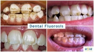 examples of damage to teeth, including staining and mottling ranging from mild to severe, from dental fluorosis caused by fluoride